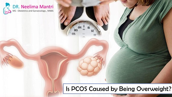 Is PCOS Caused by Being Overweight?