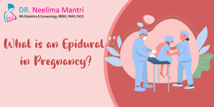 What Is an Epidural In Pregnancy?