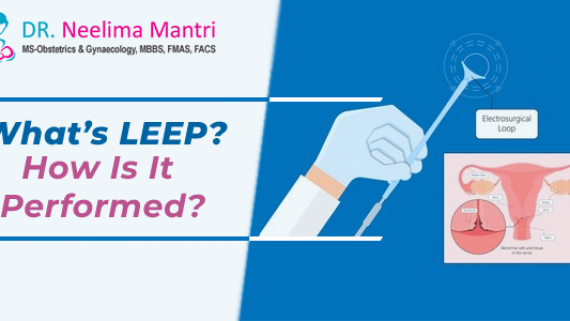 What's LEEP? How Is It Performed?